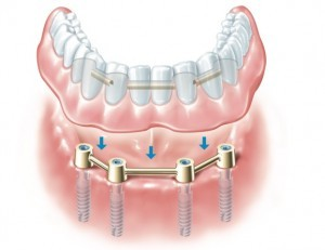 ALL ON  FOUR,(IMPLANT SUPPORTED DENTURE)