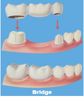 Bridge to replace a missing tooth