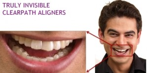 Truly_Invisible_ClearPath_Aligners_truly invisible clearpath aligners
