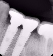 Dental implant in jaipur