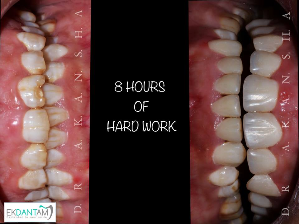 DENTAL VENEER IN JAIPUR