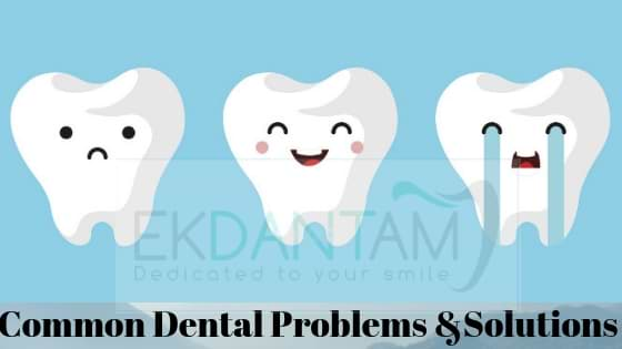 Common Dental Problems & Solutions