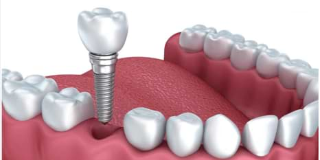 Dental implant in India