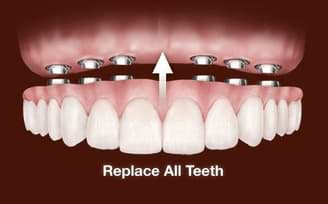 Full Mouth Dental implant in india