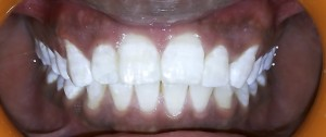 POST OPERATIVE ( Thorough oral prophylaxsis followed LED LIGHT ACTIVATED BLEACHING was performed )