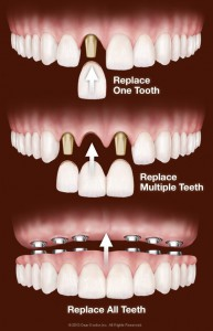 Best dental implant dentist in jaipur