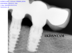 Tooth implant at Ekdantam
