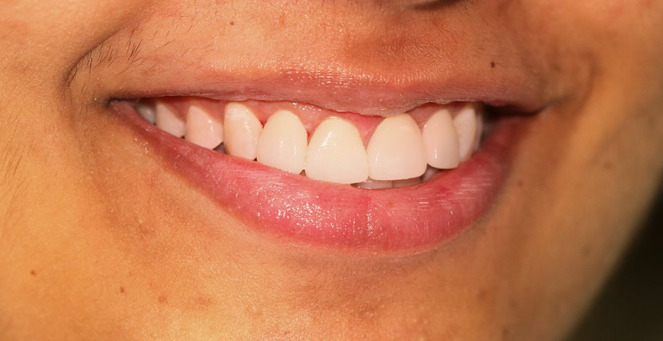 Dental treatment in jaipur-Ekdantam Dental clinic