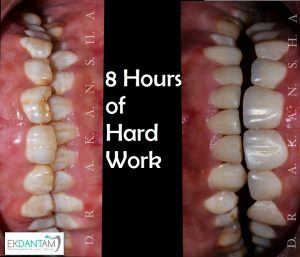 best cosmetic dentist in jaipur