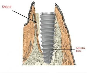 Socket Shield Technique for Dental Implants in Jaipur