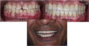 FULL MOUTH REHABILITATION IN JAIPUR