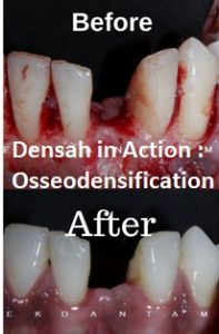Densah in Action : Osseodensification