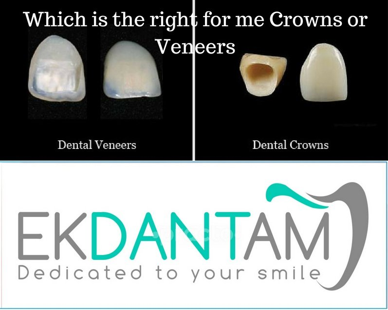 Which is the right for me Crowns or Veneers