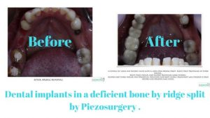 Dental implants in a deficient bone by ridge split by Piezosurgery .