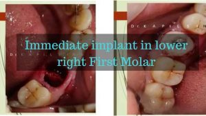 Immediate implant in lower right First Molar (1)