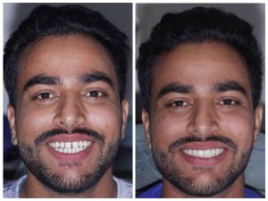 Case: Cosmetic treatment done in a day without any Teeth grinding