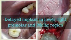 delayed implant in lower right premolar and Molar region (1)