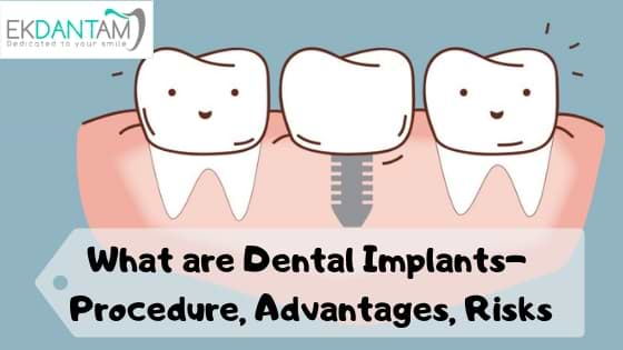 What are Dental Implants- Procedure, Advantages, Risks