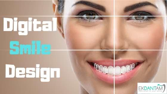 Digital Smile Designing For A Beautiful Smile Ekdantam Clinic