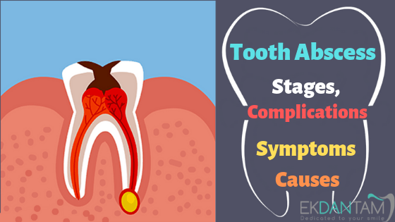 Tooth Abscess Stages Complications Symptoms And Causes Ekdantam Clinic