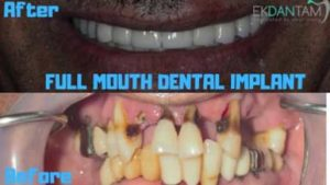 CASE OF FULL MOUTH DENTAL IMPLANT