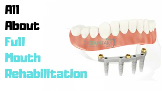 All About Full Mouth Rehabilitation
