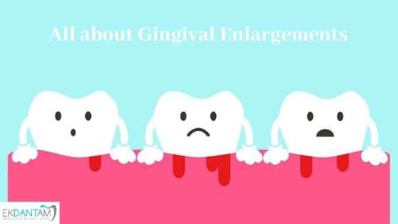 All about Gingival Enlargements