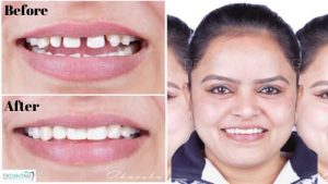 Extremely challenging smile makeover case